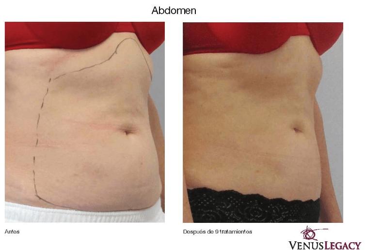 antes y despues tratamientos Venus Legacy en Bogotá